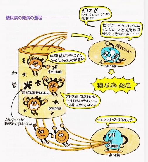 糖尿病発病の過程