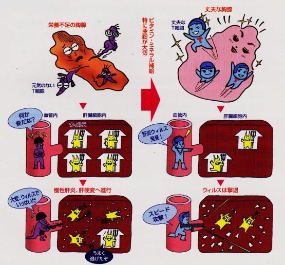 胸腺 栄養不足 ビタミン・ミネラル 亜鉛 肝炎 肝硬変